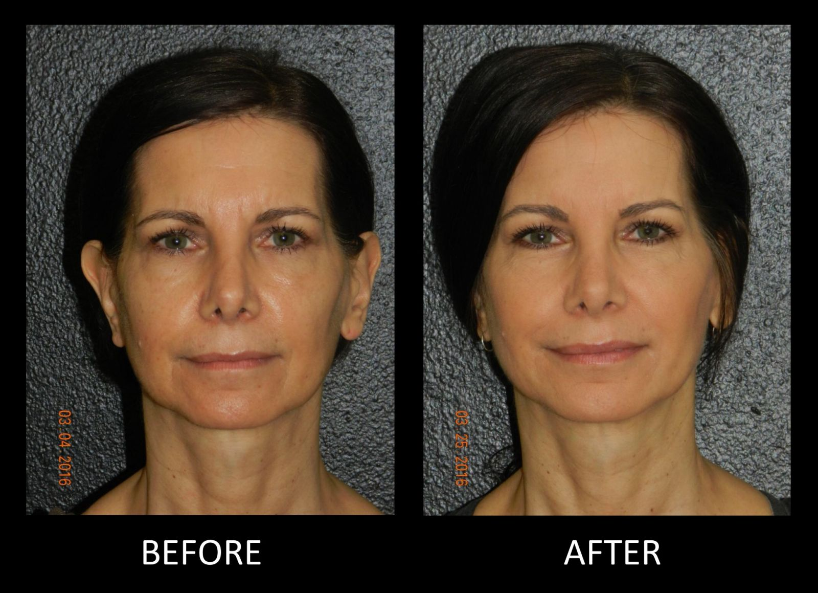 Facial Fillers in Montrose, Houston, TX
